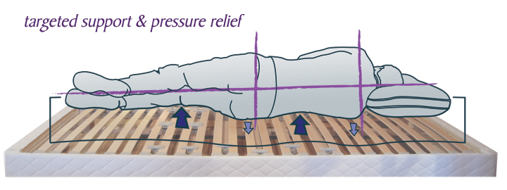 Targeted Support & Pressure Relief